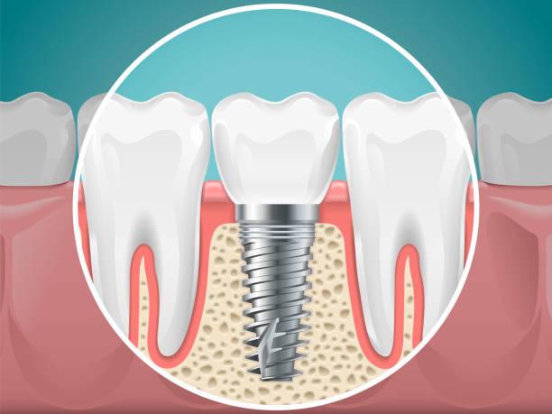 Dental İmplantlar